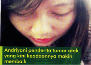 Andriyani-tumor otak