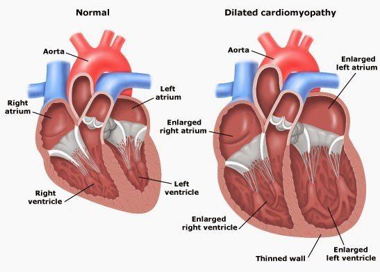 jantung membengkak