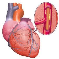 cara mencegah jantung koroner