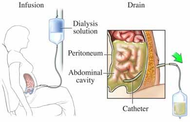 pembatasan asupan cairan dialisis peritoneal