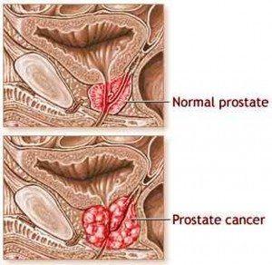 kanker_prostat-stadium-lanjut