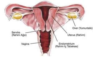 penyakit kanker rahim atau serviks