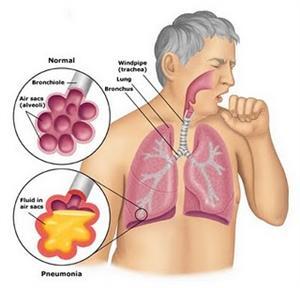 penyakit radang paru paru basah pneumonia