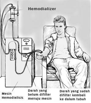 hemodialis atau cuci darah