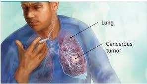 Hidup dengan kanker paru paru