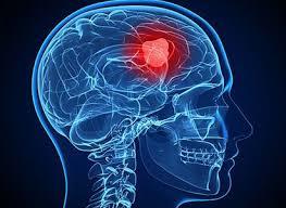 fakta seputar kanker otak