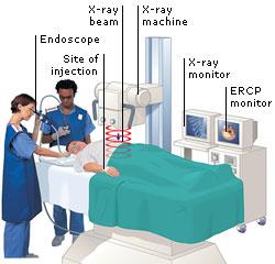 Prosedur ERCP